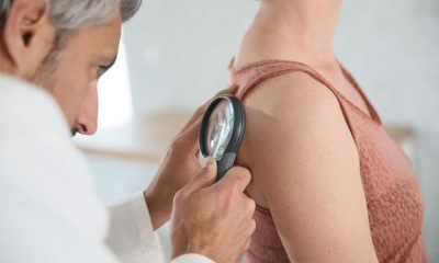 39465171 - dermatologist looking at woman's mole with magnifier